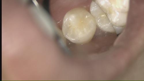 歯を削らないCR治療