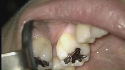 ほとんど削らない虫歯治療