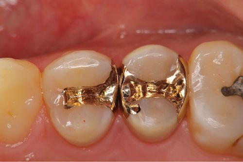 虫歯の治療例(インレー)