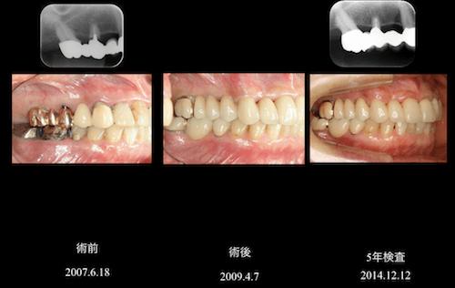 抜歯しなければいけない歯を残した症例