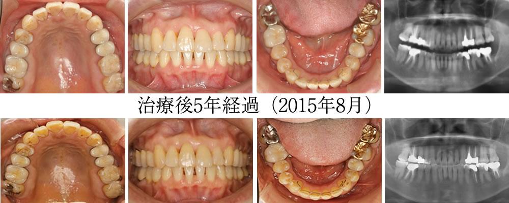 治療から5年後(2015年8月)の歯列