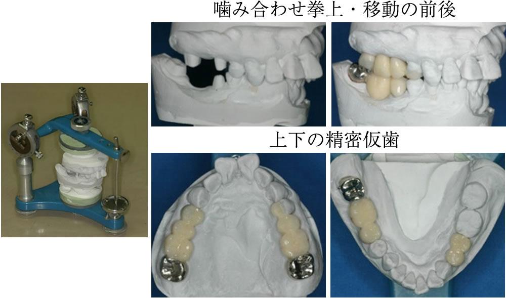 噛み合わせ器械による診断と治療