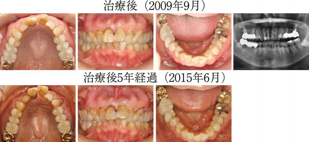 治療から5年後(2015年6月)の状態
