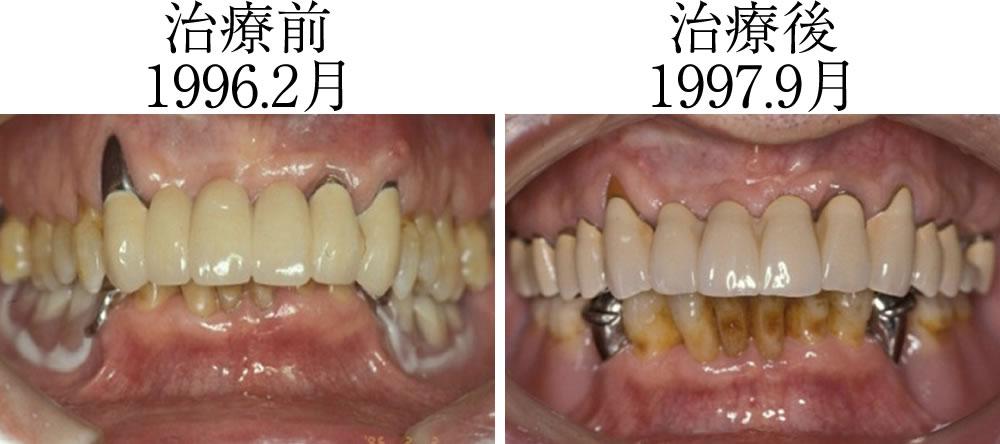 被せ物による奥歯拳上の前後