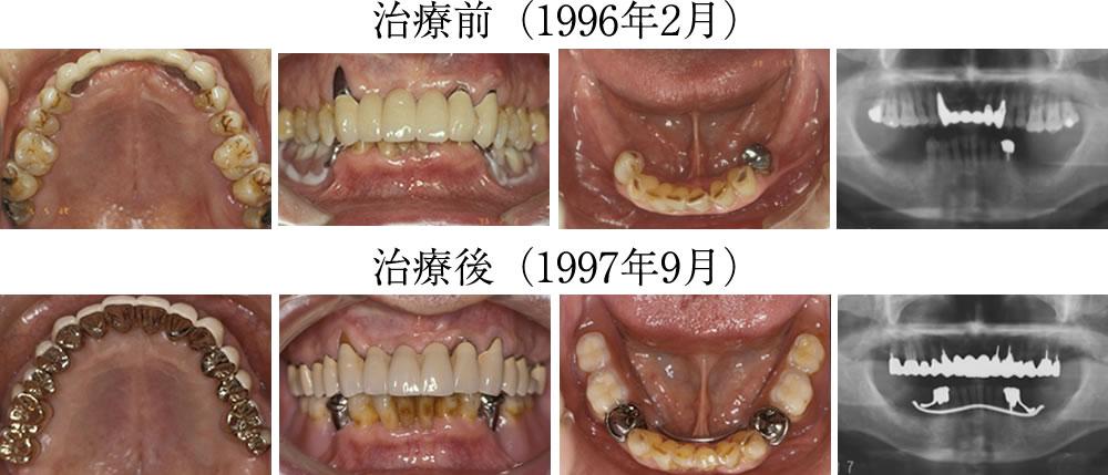 噛み合わせ治療前後の口腔内写真