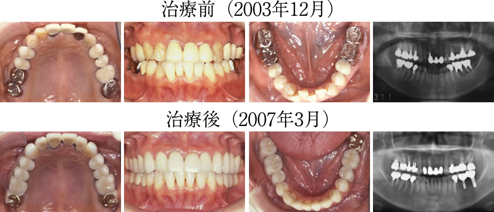 治療前後の口腔内写真