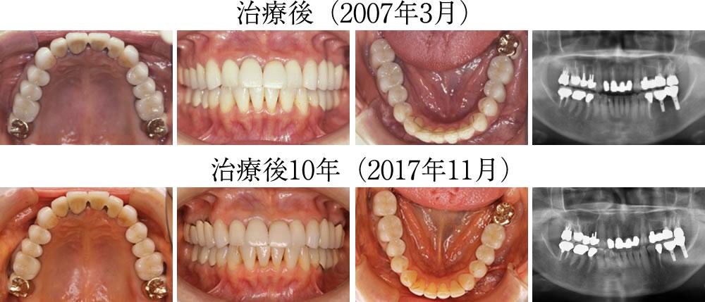 治療後と治療後10年経過の様子