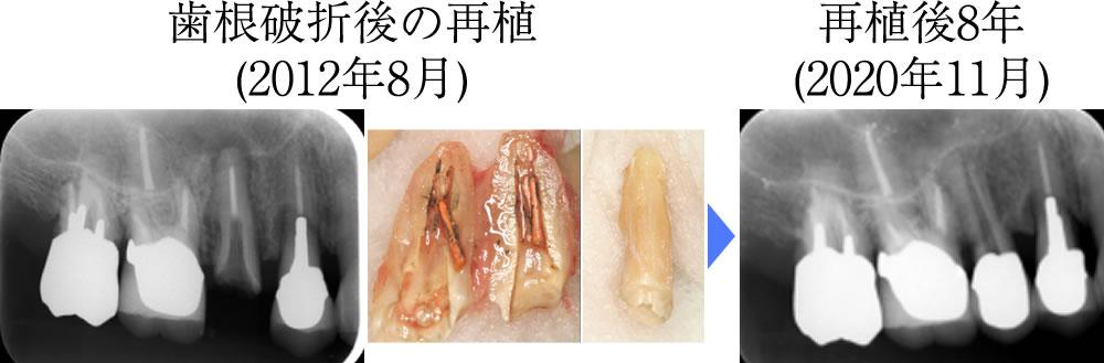 歯根破折後の再植術と再植後8年目の状態