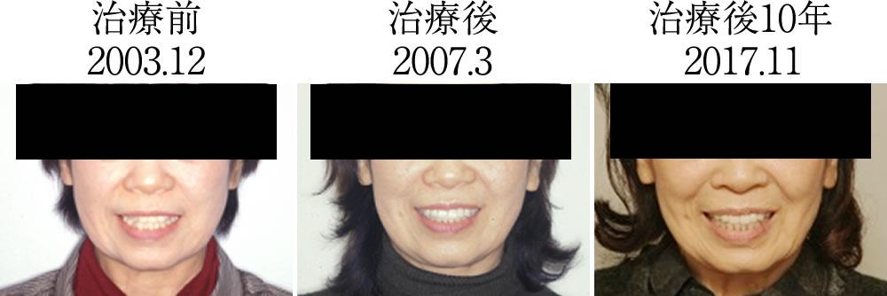 顔貌の比較