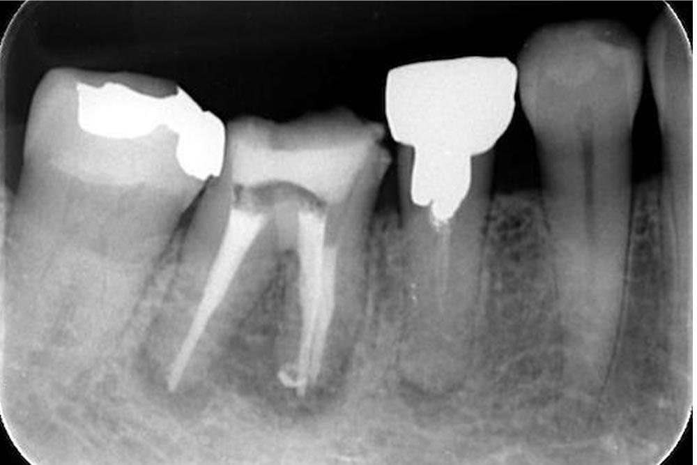 根管治療で抜歯を回避した症例