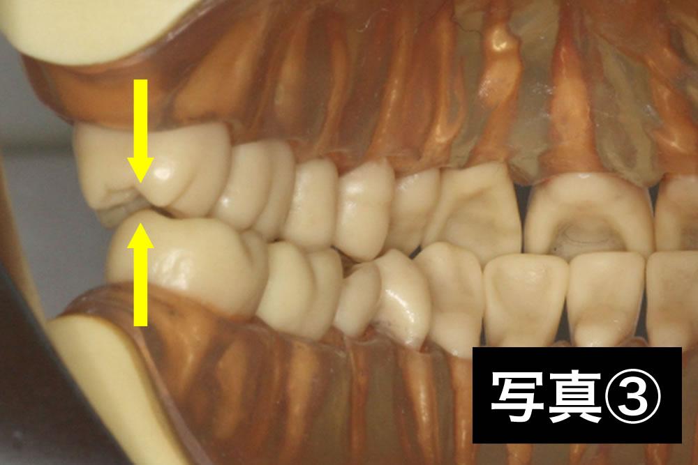 小学生の凸凹歯列の矯正治療