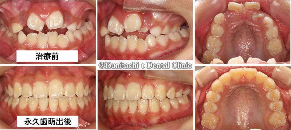 顎が小さいことで起こる凸凹歯並びの歯科矯正(8歳小学生)