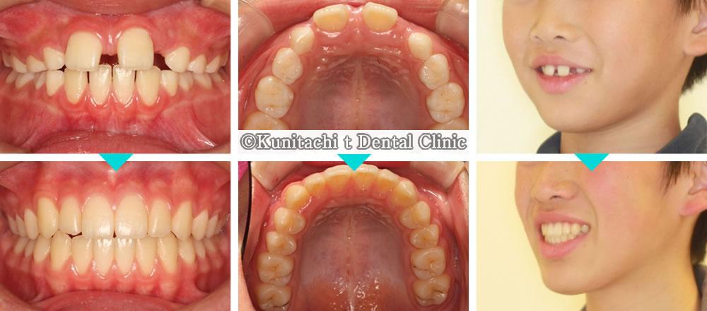 子供のすきっ歯の治療例