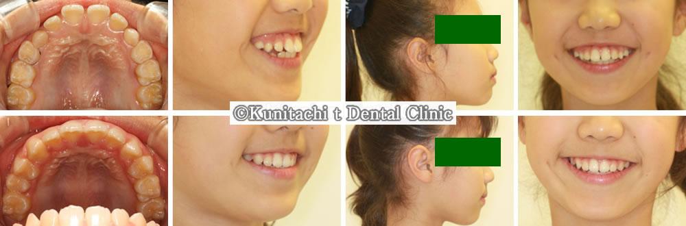 子供の出っ歯の治療例