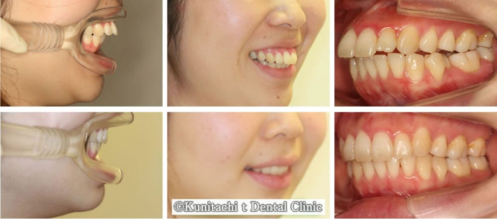 出っ歯(上顎前突)の矯正治療例(20代女性 治療期間1年8ヶ月)