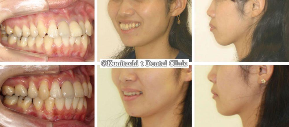 出っ歯(上下顎前突)の矯正治療例(30代女性 治療期間1年11ヶ月)