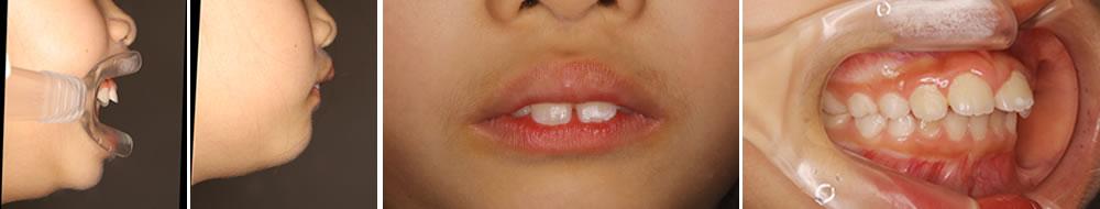子どもの出っ歯症例
