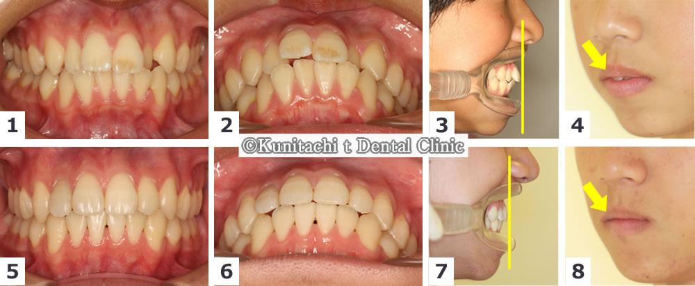 出っ歯と凸凹歯並びの矯正治療例(男子中学生)