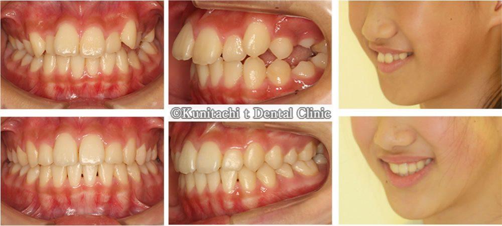 出っ歯と凸凹歯並びの矯正治療例(女性中学生)