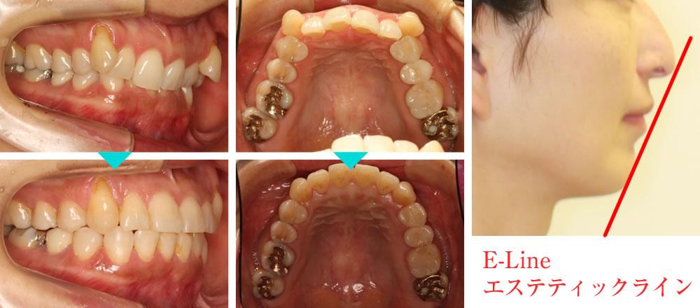 深い咬み合わせ(過蓋咬合)の矯正治療例(30代女性 治療期間1年10ヶ月)