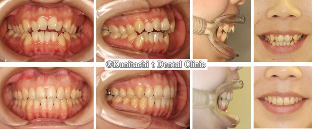 開咬の矯正治療例(20代女性 治療期間1年10ヶ月)