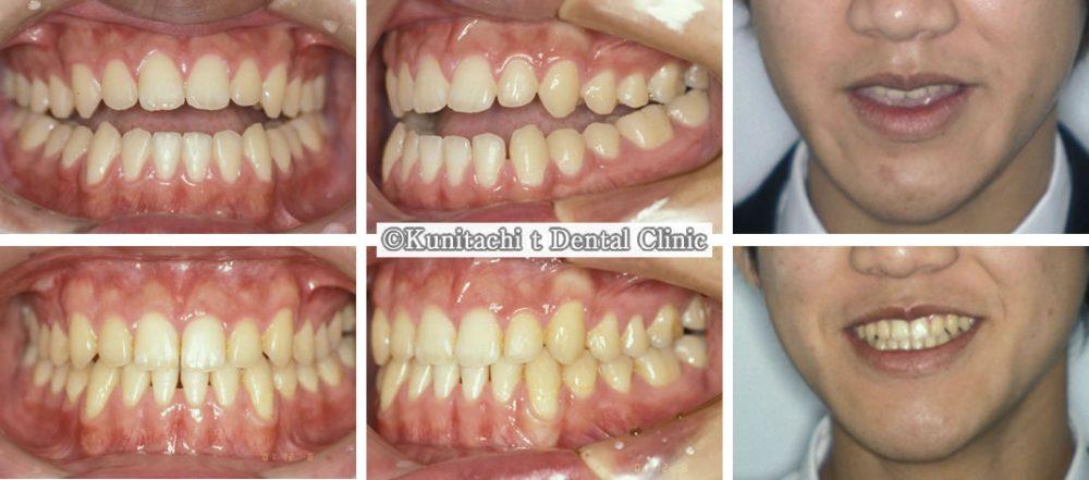 開咬の矯正治療例(男子高校生 治療期間1年1ヶ月)