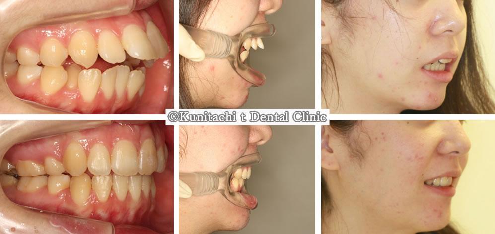 出っ歯(上顎前突)の矯正治療例(高校生 治療期間1年7ヶ月)