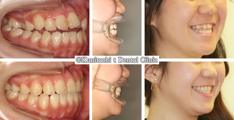 反対咬合&開咬の矯正治療例(高校生 治療期間1年4ヶ月)