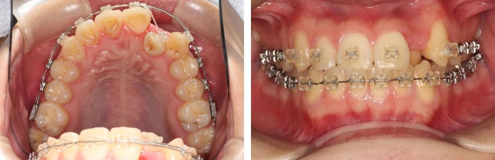 前歯が重なっている八重歯の治療例