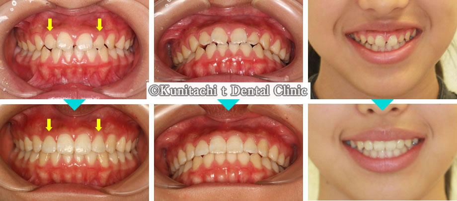 子供のすきっ歯の小児矯正治療例(中学生女児 治療期間10ヶ月)