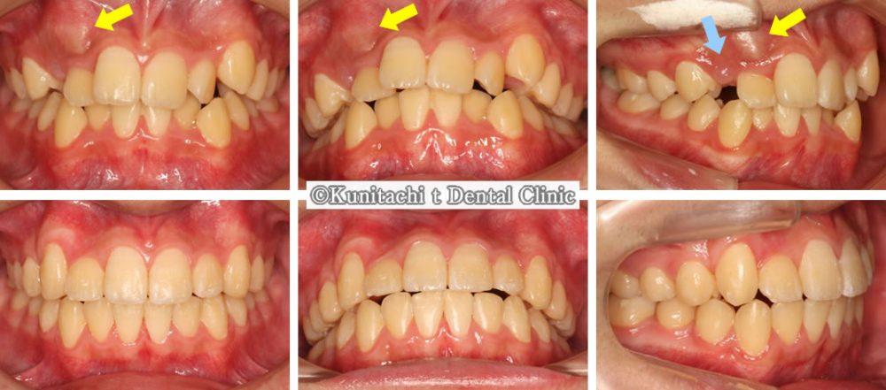 すきっ歯(犬歯埋伏)の矯正治療例(男子中学生 治療期間2年1ヶ月)