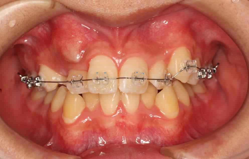 すきっ歯(犬歯が埋まっている)のレントゲン