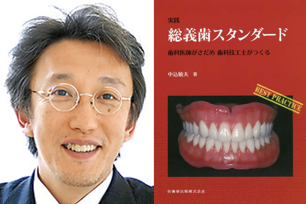 総義歯の担当歯科技工士