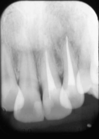 歯根嚢胞除去後