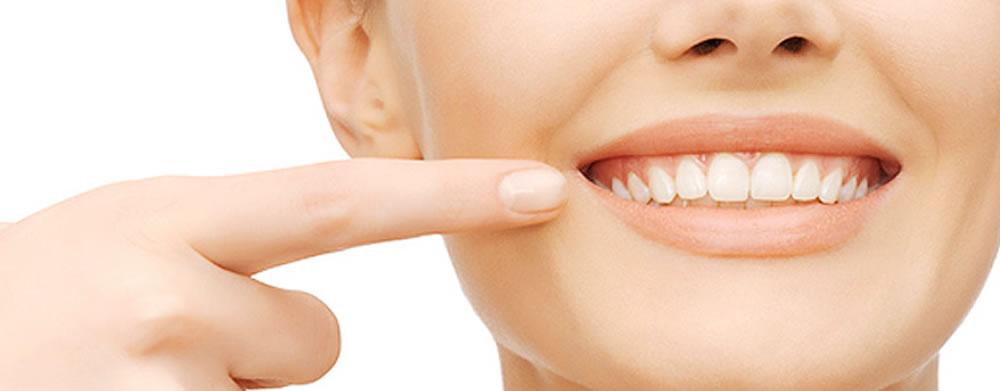 国立t歯科の成人矯正治療