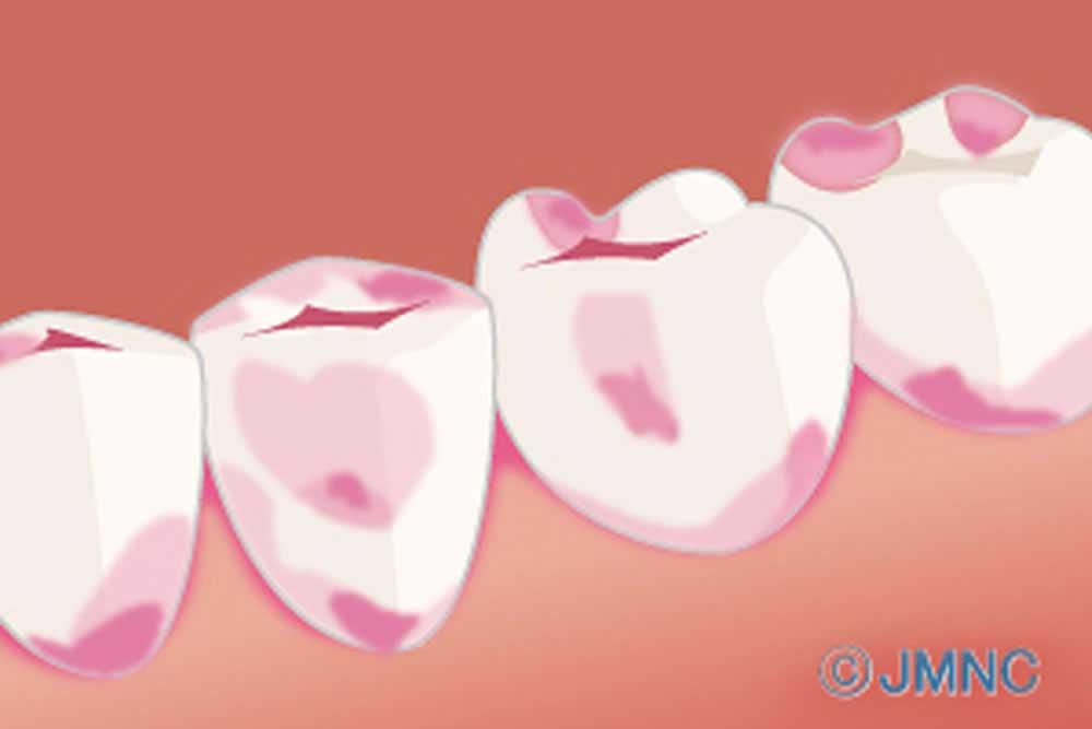 虫歯検知液の使用
