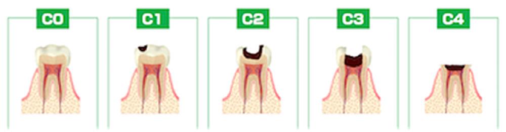 虫歯の進行順
