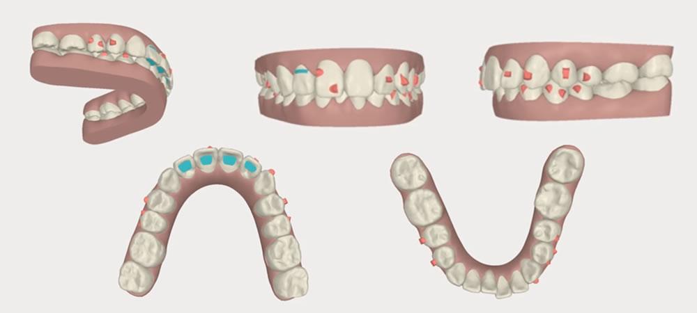 非抜歯矯正法