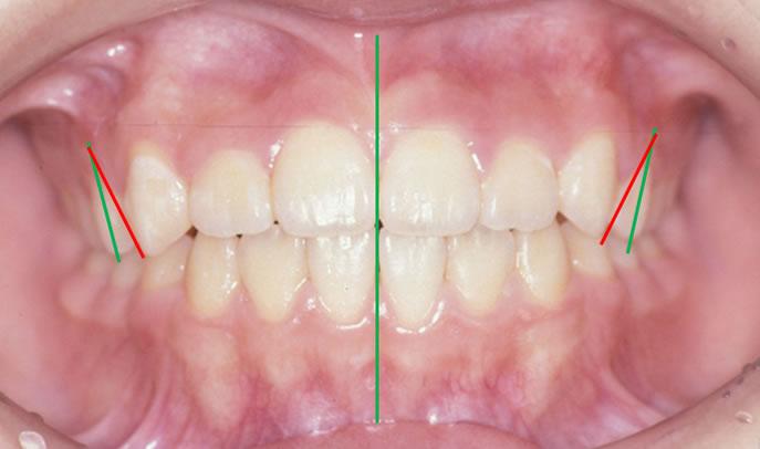 歯軸傾斜改善歯科矯正後