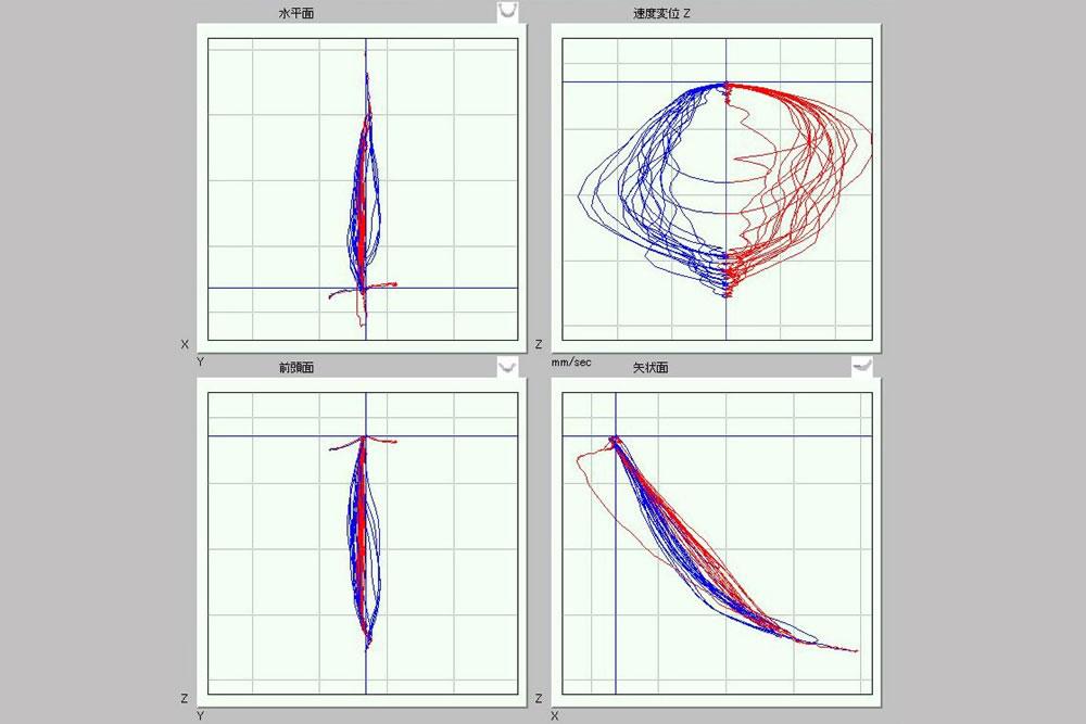 ナソヘキサグラフ